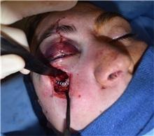 Skull/Facial Bone Reconstruction Before Photo by Rachel Ruotolo, MD; Garden City, NY - Case 35576