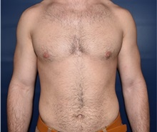 Male Breast Reduction After Photo by Rachel Ruotolo, MD; Garden City, NY - Case 35578