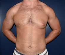 Male Breast Reduction Before Photo by Rachel Ruotolo, MD; Garden City, NY - Case 35578