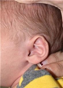 Ear Surgery Before Photo by Rachel Ruotolo, MD; Garden City, NY - Case 35583
