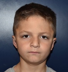 Ear Surgery After Photo by Rachel Ruotolo, MD; Garden City, NY - Case 35585