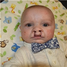 Cleft Lip and Palate Repair Before Photo by Rachel Ruotolo, MD; Garden City, NY - Case 36025