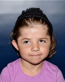 Craniosynostosis After Photo by Rachel Ruotolo, MD; Garden City, NY - Case 36036