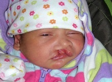 Cleft Lip and Palate Repair Before Photo by Rachel Ruotolo, MD; Garden City, NY - Case 36166