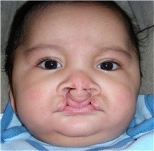 Cleft Lip and Palate Repair Before Photo by Rachel Ruotolo, MD; Garden City, NY - Case 37797