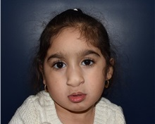 Cleft Lip and Palate Repair After Photo by Rachel Ruotolo, MD; Garden City, NY - Case 37808