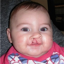 Cleft Lip and Palate Repair Before Photo by Rachel Ruotolo, MD; Garden City, NY - Case 37999