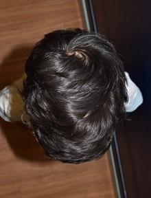 Craniosynostosis After Photo by Rachel Ruotolo, MD; Garden City, NY - Case 38005