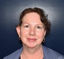Ear Surgery Before Photo by Rachel Ruotolo, MD; Garden City, NY - Case 38031