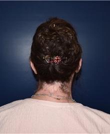 Ear Surgery After Photo by Rachel Ruotolo, MD; Garden City, NY - Case 38089