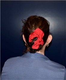 Ear Surgery Before Photo by Rachel Ruotolo, MD; Garden City, NY - Case 38089