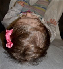 Craniosynostosis After Photo by Rachel Ruotolo, MD; Garden City, NY - Case 38094