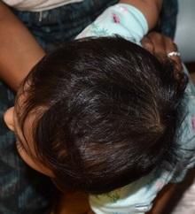Craniosynostosis After Photo by Rachel Ruotolo, MD; Garden City, NY - Case 38115