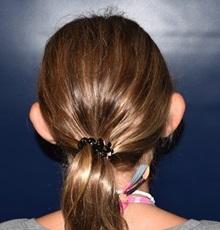 Ear Surgery Before Photo by Rachel Ruotolo, MD; Garden City, NY - Case 38119