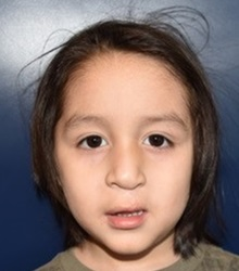 Cleft Lip and Palate Repair After Photo by Rachel Ruotolo, MD; Garden City, NY - Case 38133