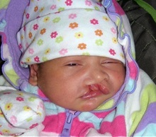 Cleft Lip and Palate Repair Before Photo by Rachel Ruotolo, MD; Garden City, NY - Case 38306