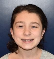 Ear Surgery After Photo by Rachel Ruotolo, MD; Garden City, NY - Case 38310