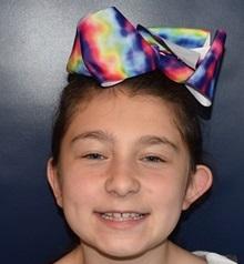 Ear Surgery Before Photo by Rachel Ruotolo, MD; Garden City, NY - Case 38310