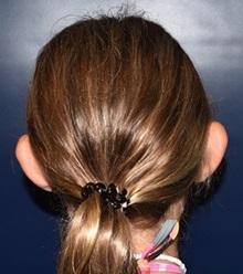 Ear Surgery Before Photo by Rachel Ruotolo, MD; Garden City, NY - Case 38312