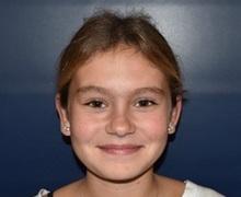Ear Surgery After Photo by Rachel Ruotolo, MD; Garden City, NY - Case 38312