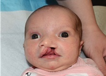 Cleft Lip and Palate Repair Before Photo by Rachel Ruotolo, MD; Garden City, NY - Case 41348