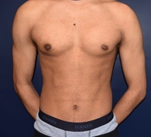 Male Breast Reduction After Photo by Rachel Ruotolo, MD; Garden City, NY - Case 41355
