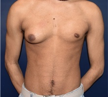 Male Breast Reduction Before Photo by Rachel Ruotolo, MD; Garden City, NY - Case 41355