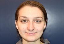 Ear Surgery After Photo by Rachel Ruotolo, MD; Garden City, NY - Case 41364