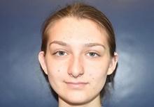Ear Surgery Before Photo by Rachel Ruotolo, MD; Garden City, NY - Case 41364