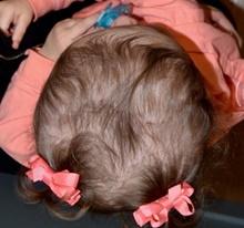 Craniosynostosis After Photo by Rachel Ruotolo, MD; Garden City, NY - Case 41372