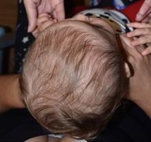 Craniosynostosis Before Photo by Rachel Ruotolo, MD; Garden City, NY - Case 41372