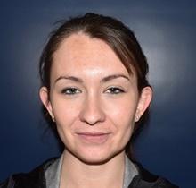 Ear Surgery Before Photo by Rachel Ruotolo, MD; Garden City, NY - Case 41378