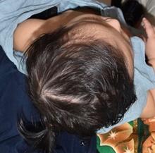 Craniosynostosis After Photo by Rachel Ruotolo, MD; Garden City, NY - Case 41380