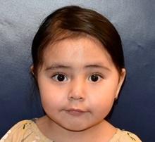 Craniosynostosis After Photo by Rachel Ruotolo, MD; Garden City, NY - Case 41955