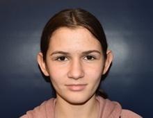 Ear Surgery Before Photo by Rachel Ruotolo, MD; Garden City, NY - Case 42052