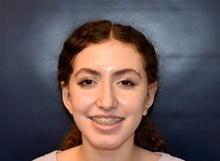 Ear Surgery After Photo by Rachel Ruotolo, MD; Garden City, NY - Case 42489