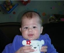 Craniosynostosis After Photo by Rachel Ruotolo, MD; Garden City, NY - Case 43375