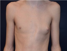 Male Breast Reduction Before Photo by Rachel Ruotolo, MD; Garden City, NY - Case 43383