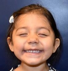 Craniosynostosis After Photo by Rachel Ruotolo, MD; Garden City, NY - Case 43408