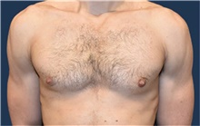 Male Breast Reduction After Photo by Rachel Ruotolo, MD; Garden City, NY - Case 43411