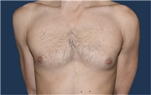 Male Breast Reduction Before Photo by Rachel Ruotolo, MD; Garden City, NY - Case 43411