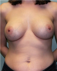 Breast Augmentation After Photo by Jennifer Greer, MD; Mentor, OH - Case 41040