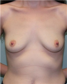 Breast Augmentation Before Photo by Jennifer Greer, MD; Mentor, OH - Case 41040