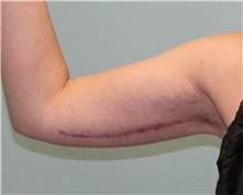 Arm Lift After Photo by Jennifer Greer, MD; Mentor, OH - Case 41042