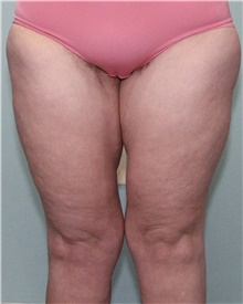 Thigh Lift After Photo by Jennifer Greer, MD; Mentor, OH - Case 41044