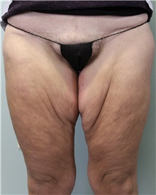 Thigh Lift Before Photo by Jennifer Greer, MD; Mentor, OH - Case 41044