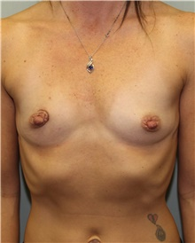 Breast Reconstruction Before Photo by Jennifer Greer, MD; Mentor, OH - Case 41058