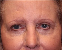 Eyelid Surgery After Photo by Jennifer Greer, MD; Mentor, OH - Case 41077