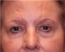 Eyelid Surgery Before Photo by Jennifer Greer, MD; Mentor, OH - Case 41077