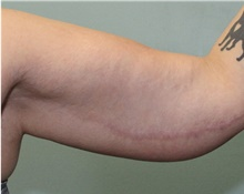Arm Lift After Photo by Jennifer Greer, MD; Mentor, OH - Case 41103